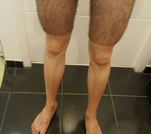 Cyclists shaved legs